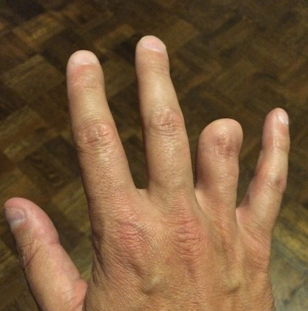 Hand with amputated finger